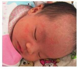 新年将至:育儿师和家长们分享一篇关于小儿湿疹的护理小窍门